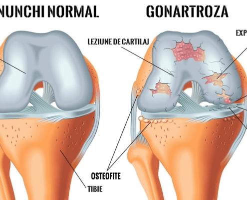 Gonartroză Artroză Genunchi