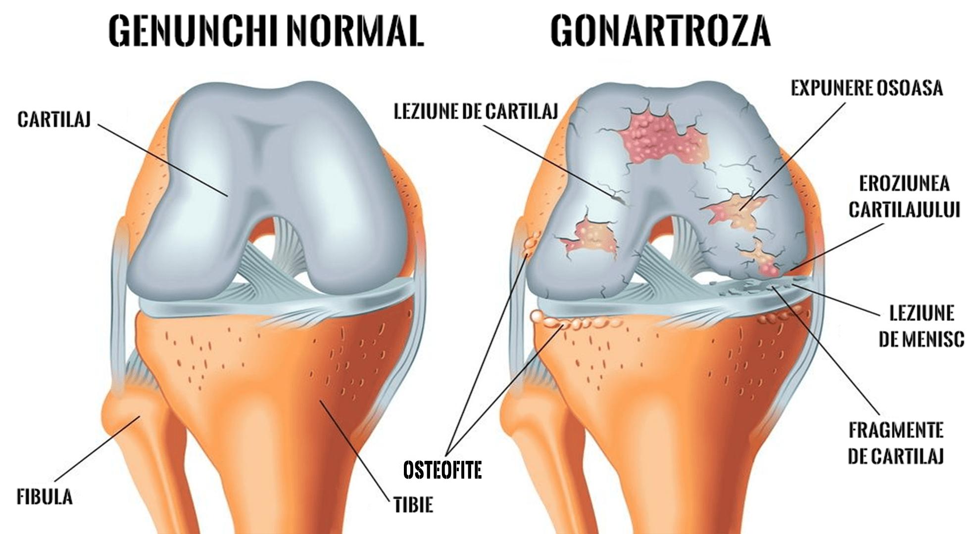 tratarea leziunilor articulației umărului și umărului medicamente pentru tratarea durerilor articulare