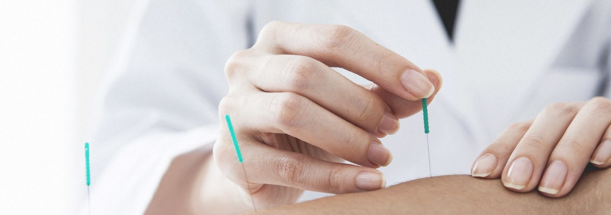 Dry Needling Trigger Point Points