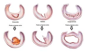 corn posterior menisc intern