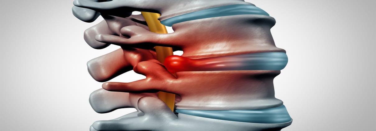 Hernie de disc Hernia de disc – simptome, clasificare, cauze, diagnostic, tratament
