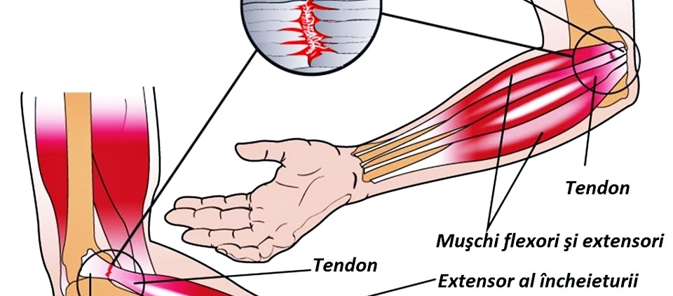 Epicondilita laterală (Cotul tenismenului)