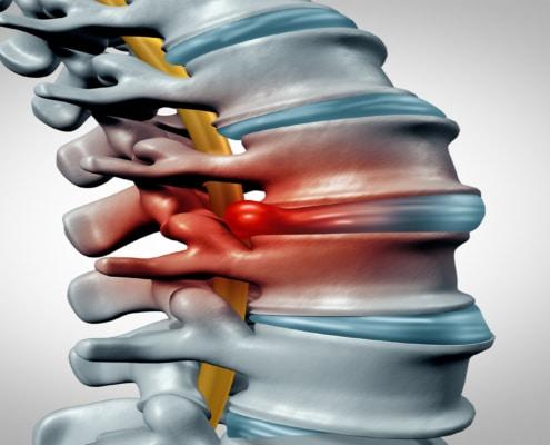 Hernie de disc Hernia de disc – ce este, simptome, clasificare, cauze, diagnostic, tratament, investigații, recuperare