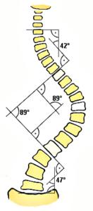Metoda lui Cobb-Lippmann (Depistarea scoliozei)