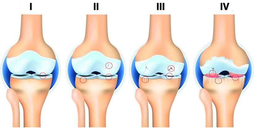 tratamentul artrozei articulațiilor interfalangiene ale piciorului medicamente tratamentul zgomotului urechii osteocondrozei cervicale
