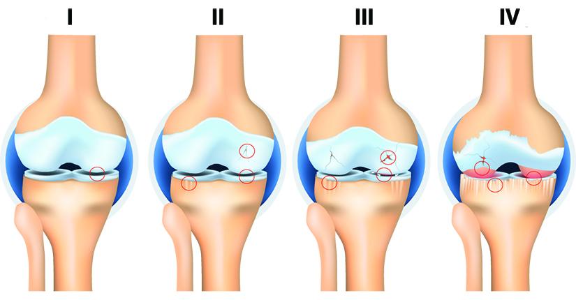 osteoartrita primara generalizata articulația șoldului când dureri de mers