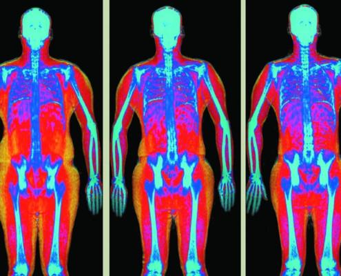 Osteodensitometrie Osteodensitometria DEXA