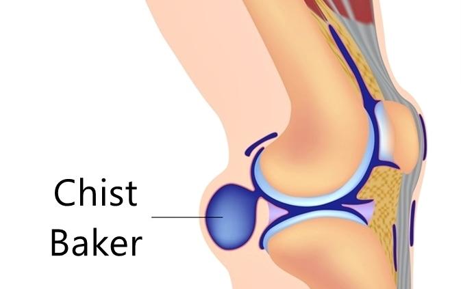 Chist Baker Sinovial - ce este, cauze, simptome, diagnostic, tratament, operație, evolutie, crema, unguent, fizioterapie