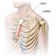 Costocondrita (Sindromul Tietze) - ce este, cauze, diagnostic, tratament