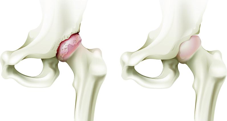 Coxartroza (artroza șoldului) - ce este, diagnostic, tratament, proteză