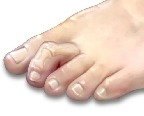 Deget Degetul în ciocan gheară grifa digitală
