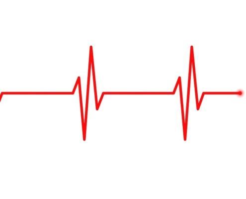 Electrocardiograma ECG EKG - ce este, la ce ajută, cum se face, pregatire, diagnostic, boli, afectiuni