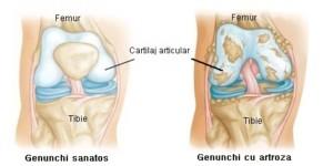 Gonartroza Artroza Genunchiului Artroză Genunchi