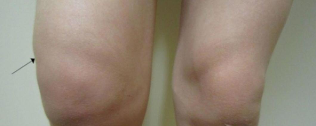 Hidrartroza (Apa la genunchi) - ce este, cauze, simptome, tratament, extractie, investigatii, complicatii