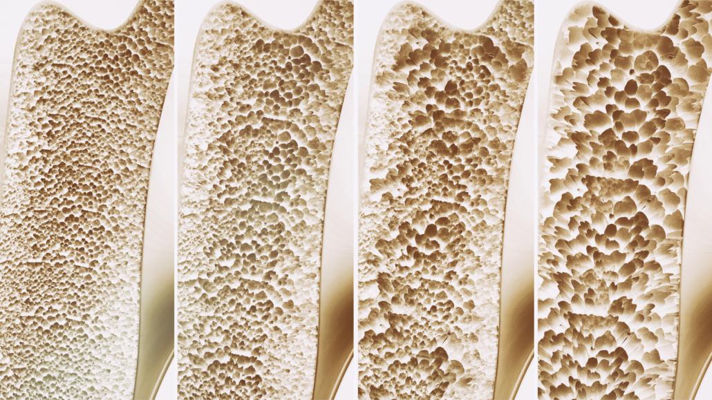 osteoporoza diagnostic medicament pentru inflamația articulațiilor umărului