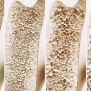 Osteoporoza Osteoporoză Osteopenie