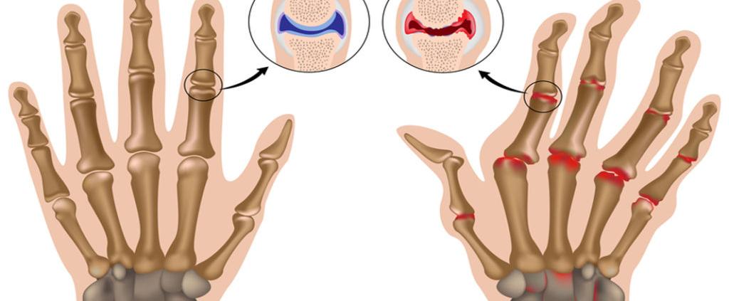 Poliartrita Poliartrită Reumatoidă Poliartritei Reumatoide Poliartrita reumatoidă - ce este, cauze, diagnostic, evoluție, tratament