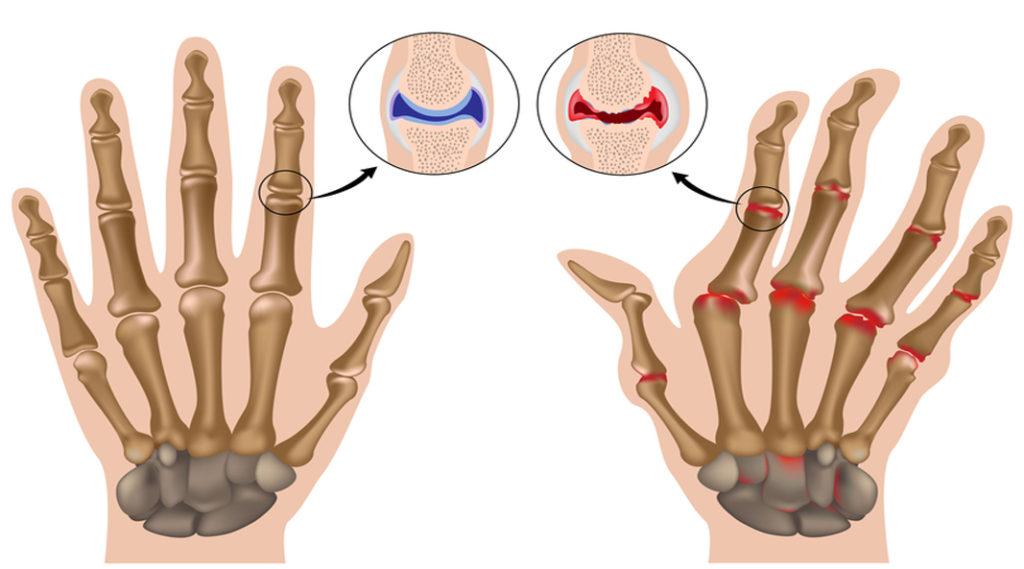 Factor Reumatoid IgA, IgM | mysneakers.ro