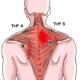 Punctele trigger - ce sunt, cauze, simptome, diagnostic, tratament, terapie, harta, exercitii