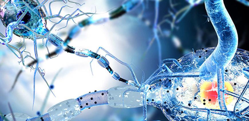 Scleroza multiplă Scleroză Multiplă sclerozei multiple