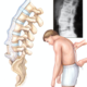 Spondilita spondilită anchilozantă anchilozanta spondilitei anchilozante