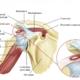Tendinita calcificantă a umărului - ce este, semne, simptome, cauze, mecanism, operație, tratament, exerciții