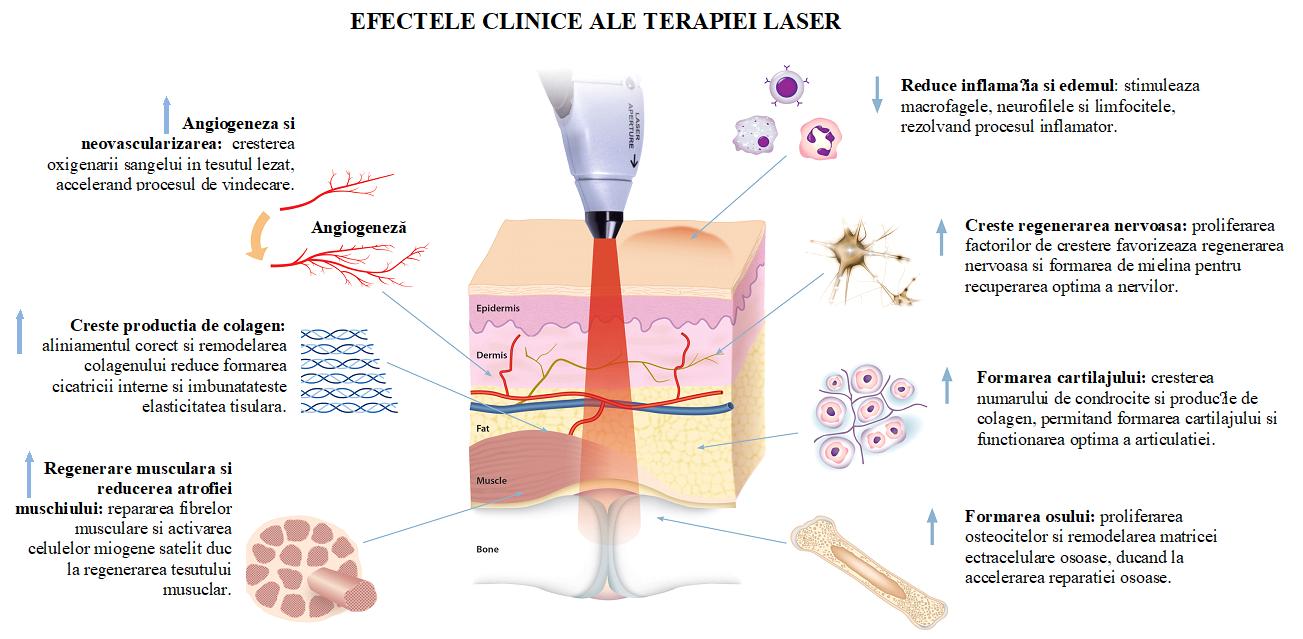 Terapia LASER Laserterapie