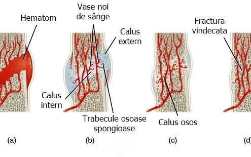 Vindecarea oaselor fracturii fractura calus calusul osos