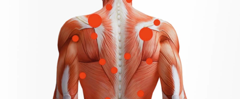 Contractura musculara