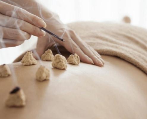 Terapia Terapie Moxa Moxibustie - ce este, aplicatii, efecte, indicatii, beneficii, contraindicatii, tratament, recuperare, remediu