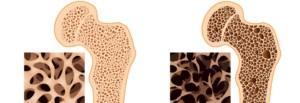 Osteoporoza Osteoporoză