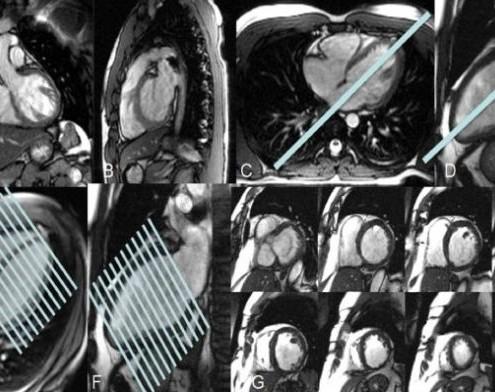 Cardio-RM RMN Cardiac