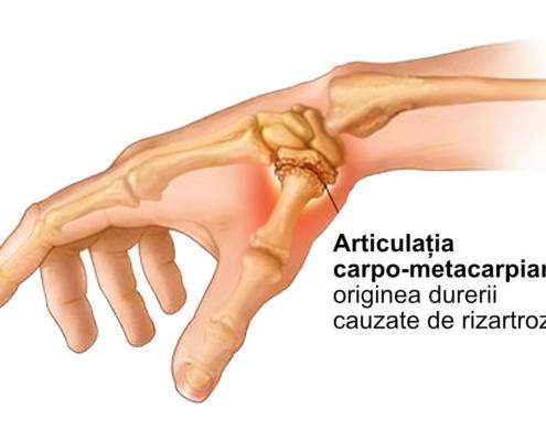 Rizartroza Artroza policelui Artroza Police - ce este, cauze, simptome, evolutie, diagnostic, investigatii, tratament, operatie, remedii, recuperare, alimentatie, medicamente, pastile