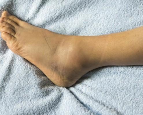 Umflă picioarele Picioare umflate