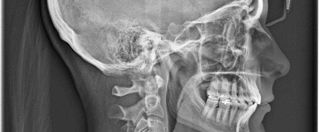 Radiografie Radiologie Raze X